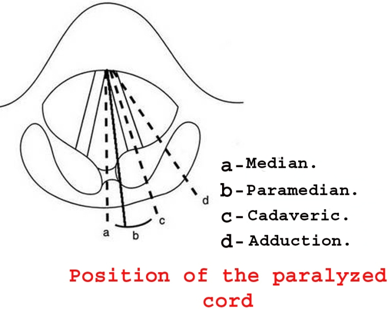 position of paralysed cord